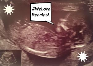 Beebies scan pic